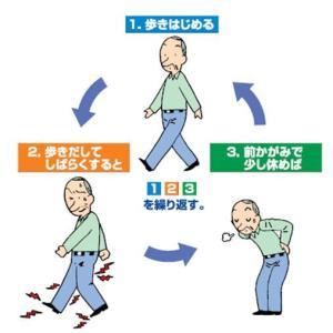 腰痛を引き起こす「脊柱管狭窄症」は、どんな動作がNG?