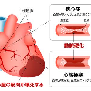 野村夫妻も…死因国内2位「虚血性心不全」寒い冬は注意、12月~2月に高まる発症率