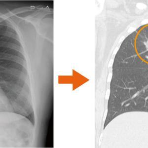 胸部レントゲン検査 肺がんの見落としが発生する理由