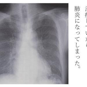 掌蹠膿疱症性関節炎