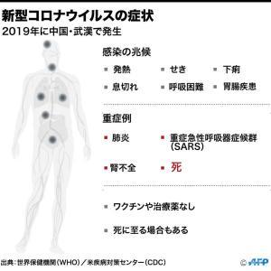 【朗報】新型コロナウイルスさん、治療薬が見つかってしまう