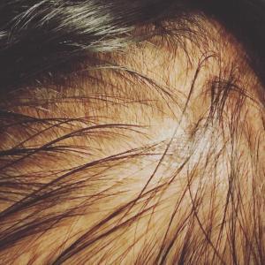 トルコエステセンターの植毛施術について PRP療法とは?