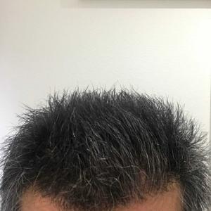炭酸水洗髪10日目