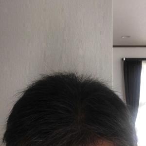 大量植毛後、分け目は出来るのか?