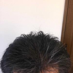 大量植毛後2度目の散髪