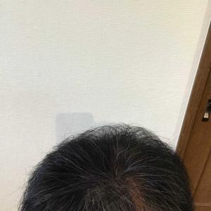大量植毛後10ヶ月経過 髪を切った