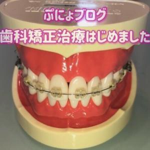 歯を食いしばるクセ、仕事中に出てしまう