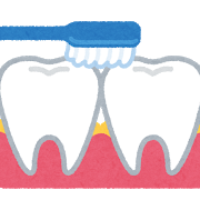【歯科矯正】歯磨きをしっかりしないと、大変なことになります(゚Д゚;)