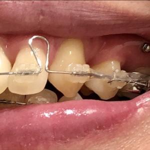 【歯科矯正】歯ぐきにネジを埋め込んで痛くない?