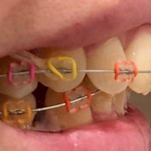 【歯科矯正】出っ歯だった人が出っ歯じゃなくなるとどうなる?