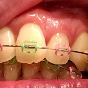 【歯科矯正】歯茎が盛り上がってきたんですが、コレって骨隆起ってやつかなぁ・・・??