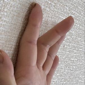 腱鞘炎《バネ指》治療のステロイド注射から約1年。その後の痛みは?再発は?