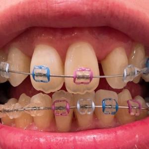 【歯科矯正】治療経過29~犬歯のブラケットを付け替え~