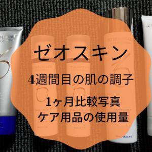 顔のシミを無くしたい!ゼオスキン(約)1ヶ月使用の比較写真。ケア用品の使用量。