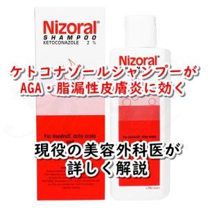 【現役美容外科医が詳しく解説】AGA・脂漏性皮膚炎の抜け毛にケトコナゾールシャンプー(ニゾラール、ニナゾル)が効果的な理由