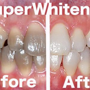 テトラサイクリン着色歯はSuper Whiteningで白くできるから削る治療は必要ない、ことをQEDする動画