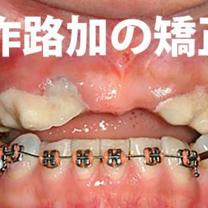20代で前歯を抜歯され総入れ歯の危機に直面した主婦が復活した歯科治療と歯列矯正の歯列矯正編