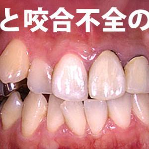 GVBDO 32才主婦 鬼歯と咬合不全の歯列矯正
