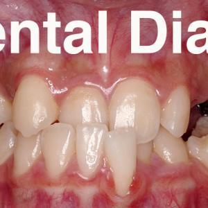 GVBDO 乳歯が残ったままの受け口で八重歯で難症例の極みの歯列矯正