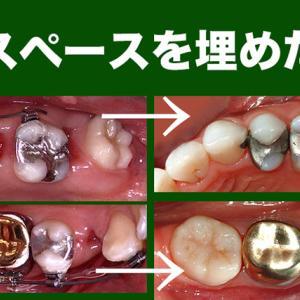 GVBDO ホープレスな奥歯を2本抜き、インプラントではなく、親知らずの移動でスペースを埋めた歯列矯正