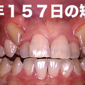 GVBDO 4年157日(GVBDOの通常の4倍)かかった歯列矯正