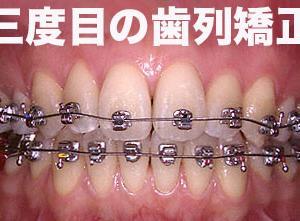 GVBDO 過去2度の歯列矯正失敗により顎関節症が発症し、不定愁訴で不登校になった女子大生が3度目の歯列矯正で復活した初診から19年間にわたる臨床記録。