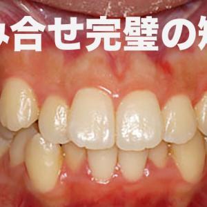 八重歯 GVBDO 噛み合わせが悪く中学2年で体調不良になり、不登校になったが、歯列矯正を行うことで健康を回復し、社会復帰を遂げた実際の症例