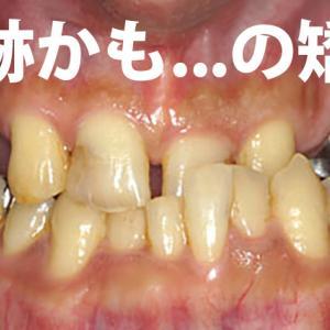 ボロボロでガチャ歯で世の中の歯医者さんから「噛み合わせをよくしたければ、今の状態では無理。総入れ歯にするしかない。」と言われた32歳が復活した歯科治療