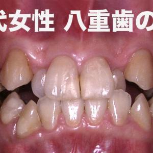 八重歯でクロスバイト 28才 OL 1年248日かかった歯列矯正・Before & After Braces -Time Lapse -614 Days