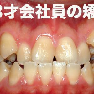 八重歯で受け口 23才 会社員 1年217日かかった歯列矯正・Before & After Braces -Time Lapse -582 Days