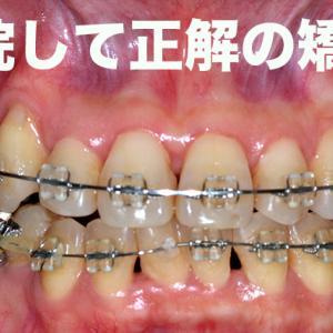 歯列矯正3年計画の1年目で痛くて我慢の限界を超える→転院→再矯正 151日 GVBDO Before & After Braces -Time Lapse -151Days