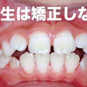 小学生はブラケットを付けた歯列矯正をしない理由 GVBDO 小学1年から高校3年までの歯並びの移り変わり 実際の画像 ー女の子ー 歯列矯正は15才までしない理由 QAnons