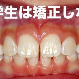 15才まではブラケットを付けた歯列矯正をしない理由 GVBDO 4才から15才までの歯並びの移り変わり 実際の画像ー男の子ー歯列矯正は15才までしない理由