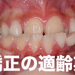 どんなにひどい歯並びでも歯列矯正は15才までやらない、それが近代医学。