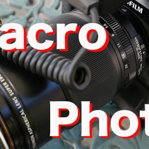オススメの口腔内撮影用のカメラとは?Fujifilmがオススメかも。