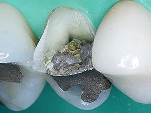 安部ちゃんはもうない。最近、歯茎がはれた  とか  歯が痛い  とか  口の中に出来物ができた  とか  歯冠破折した  とか  歯根破折したという人が多い理由はなんですか?