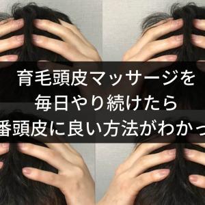 育毛頭皮マッサージを毎日やり続けたら1番頭皮に良い方法がわかった