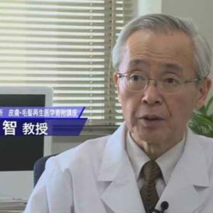 【超朗報】ハゲ研究家が「抜け毛を科学する」で発した内容がハゲの中で話題に!!!!!