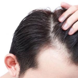 【ハゲ速報】ワイ、29歳にしてハゲるし白髪も大量発生(画像あり)