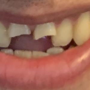 インドで歯医者。