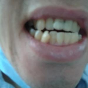 インド 歯医者 その2