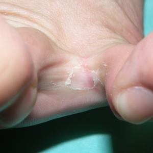 水虫(足白癬)の患者さんが増えてきました。