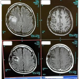 お久しぶりです。元気に生きてます。10月15日は第2の誕生日!覚醒下による悪性脳腫瘍手術体験記