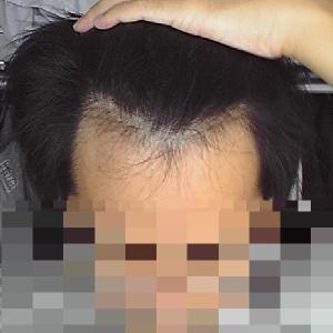 薄毛に似合う髪型にしてくれる美容院よりAGAクリニック探した方がいい