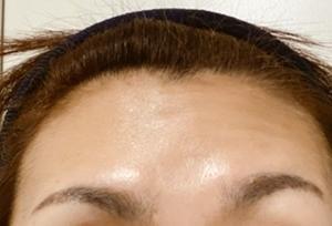 耳下腺腫瘍: 術後1ヶ月半