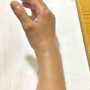 右手関節石灰沈着性滑膜炎のその後