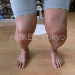 膝の動きをよくしよう 動画