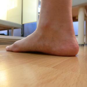 踵・小趾・母趾関節の痛みの謎