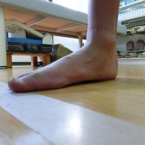 テーピングで改善できない足首の動き