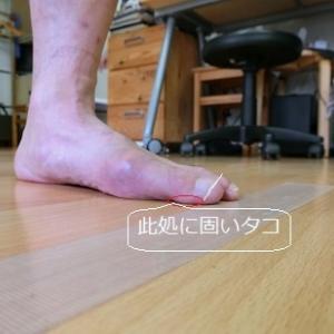 膝裏の痛みは足もとから